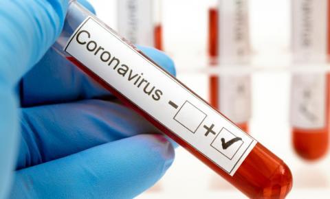Ministério da Saúde confirma primeiro caso de reinfecção por Covid-19 no país