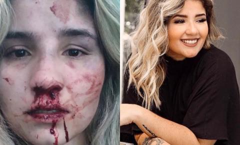 Modelo de Americana é agredida por ex-marido