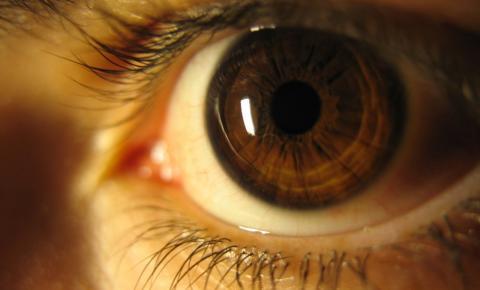 Íris dos olhos ajuda a identificar problemas de saúde